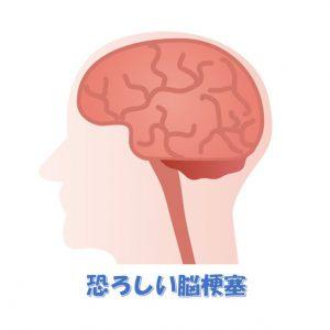 Top画面_脳梗塞