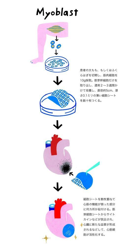 心筋シート作成図